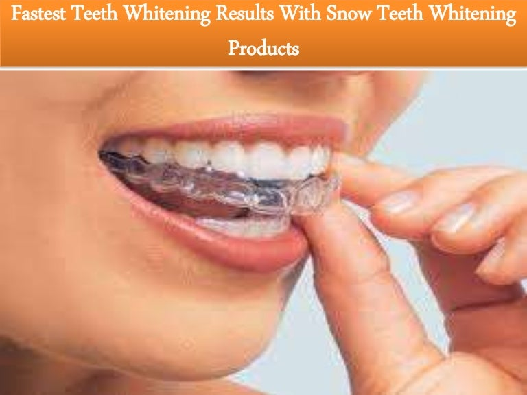 Fastest Teeth Whitening Results With Snow Teeth Whitening Products