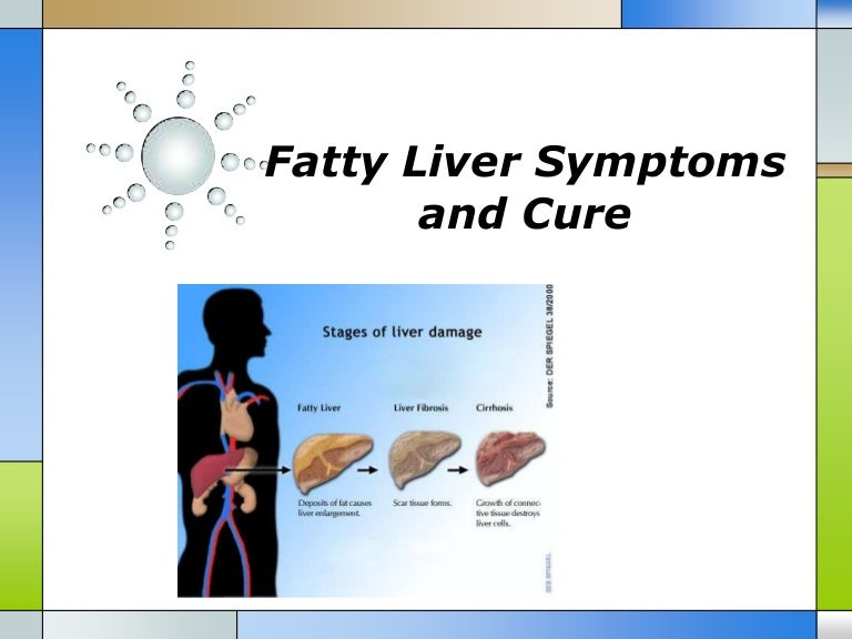 What food can reduce fatty liver picture 1