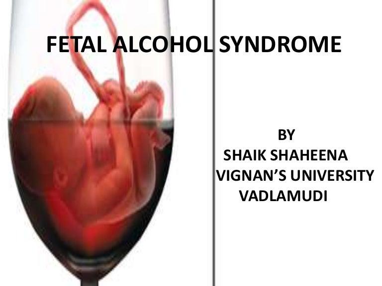 Of alcohol syndrome fetal symptoms Fetal Alcohol
