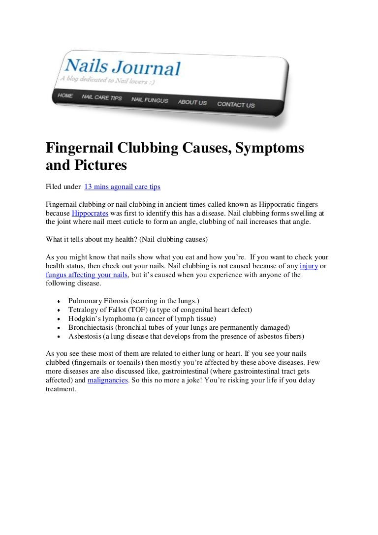 clubbing causes