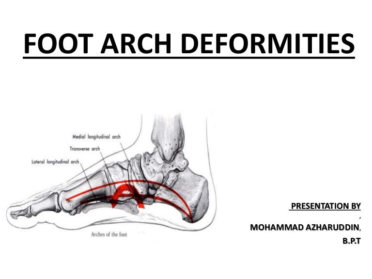 Foot arch deformities 2