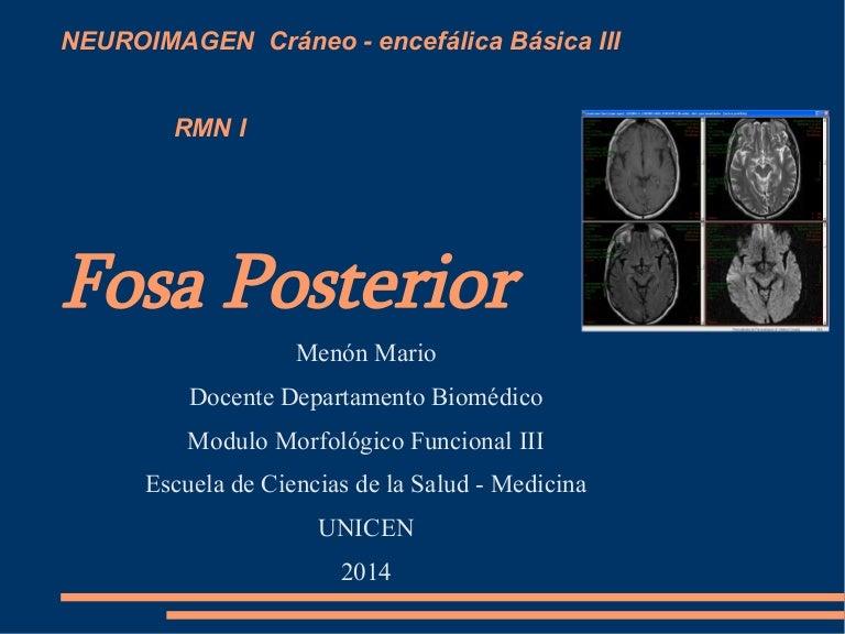 Fosa posterior rmn (1)