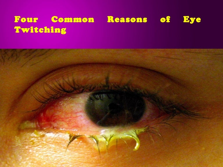 983f8fae955 Four common reasons of eye twitching