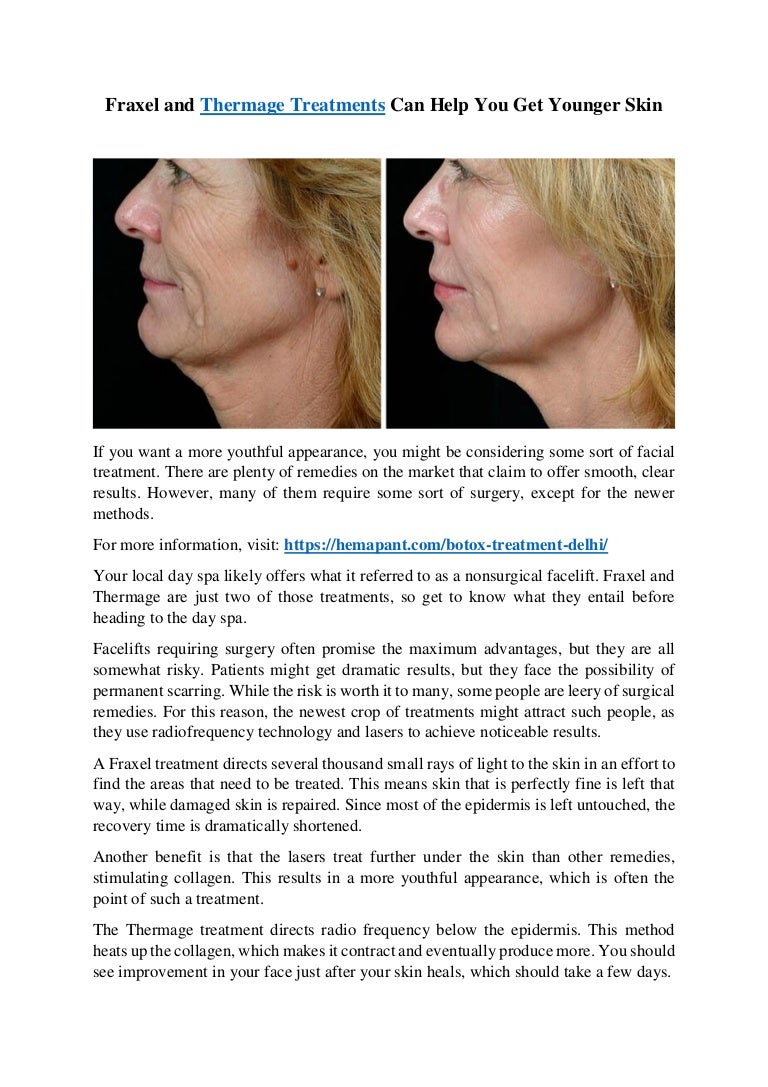 Fraxel and Thermage Treatments Can Help You Get Younger