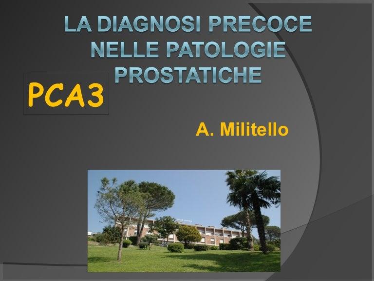 biopsia prostata sospetto carcinoma treatment