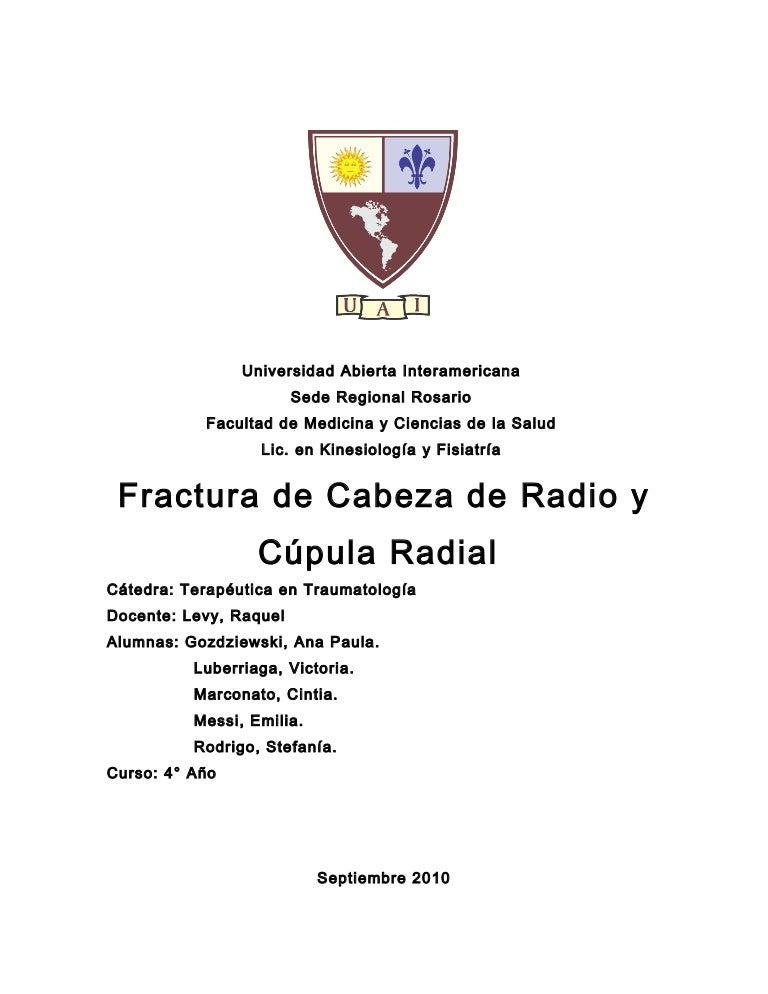 Fx Cabeza de Radio y Cupula Radial!
