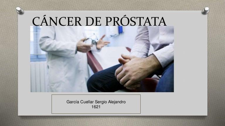 ¿Con qué frecuencia recibe radioterapia para el cáncer de próstata?
