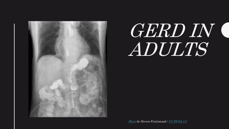 can find acid reflux x ray