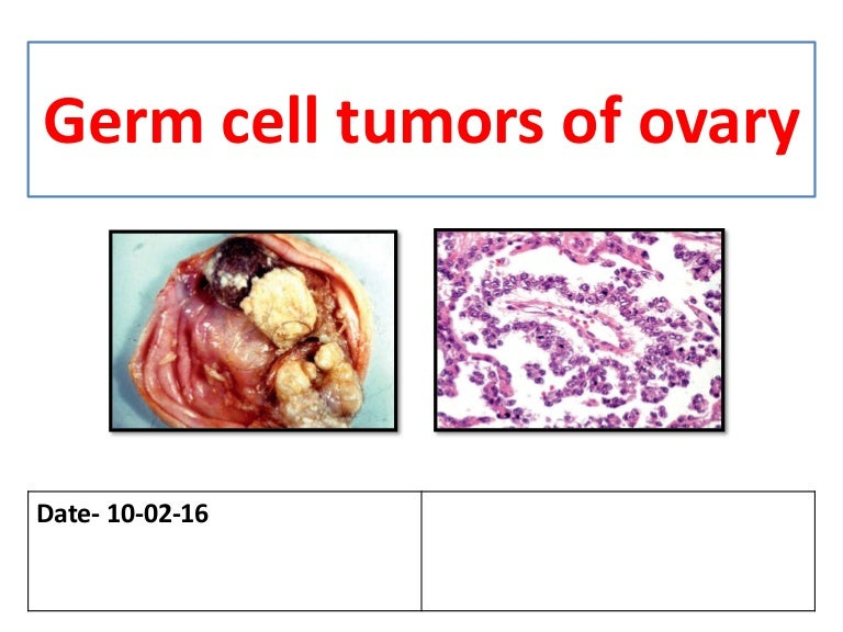 Germ Cell Tumors Of Ovary