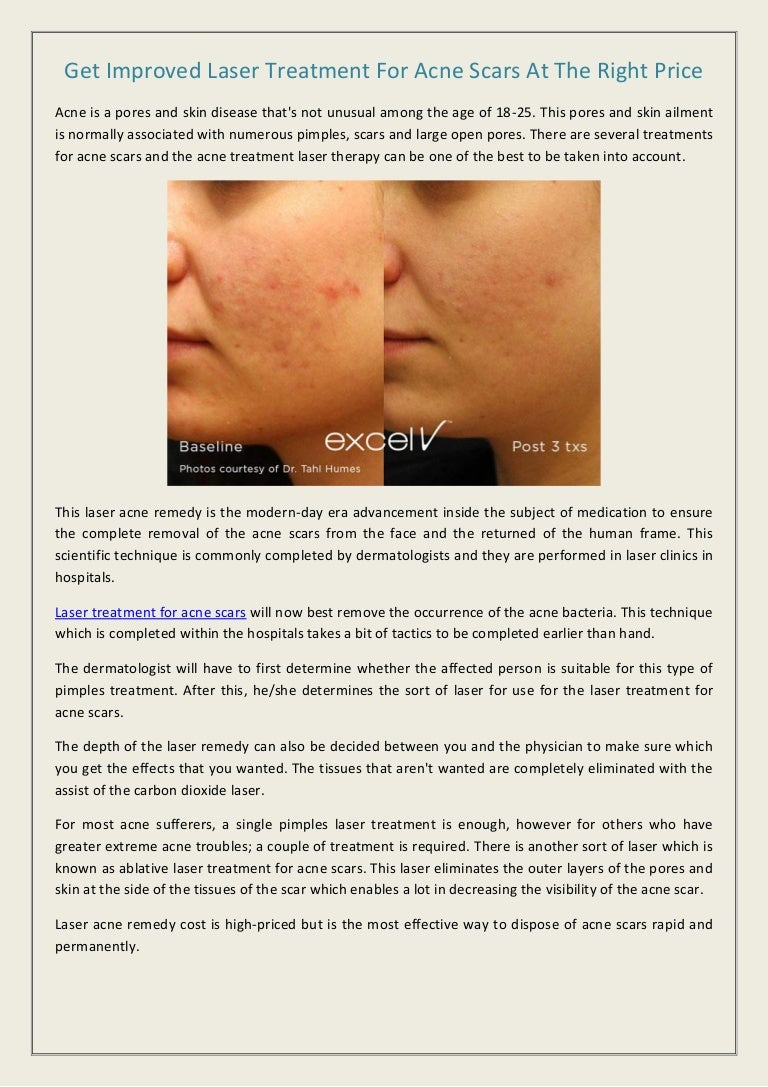 Get Improved Laser Treatment For Acne Scars At The Right Price