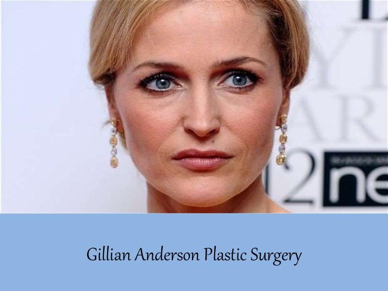 Facial surgery duarte