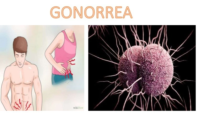 Gonorrea