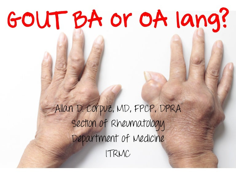 Gout ba or OA lang: for patients