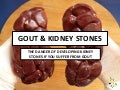 Gout and Kidney Stones