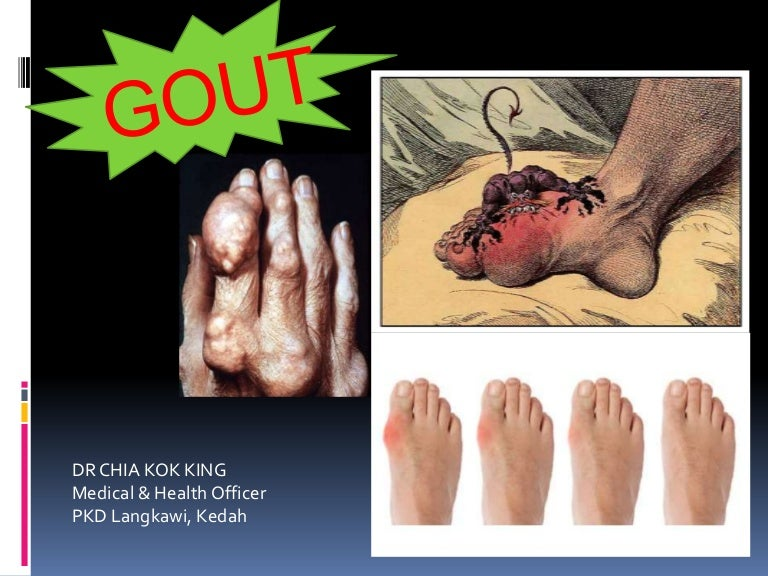 how to reduce high uric acid level gout symptoms foot arch gout and massage therapy