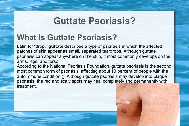 guttate psoriasis, Skeleton