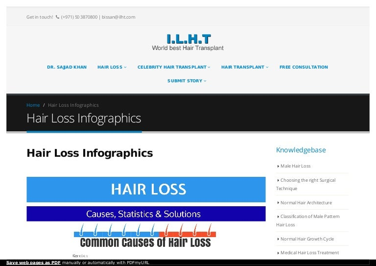 Hair loss infographics BY Hair Transplant Surgeon