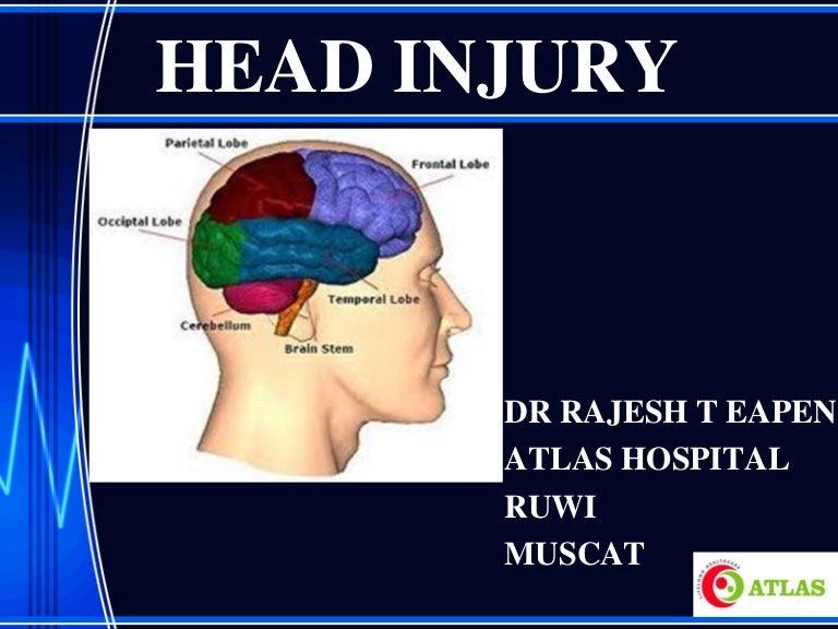 Injury types of head Types of