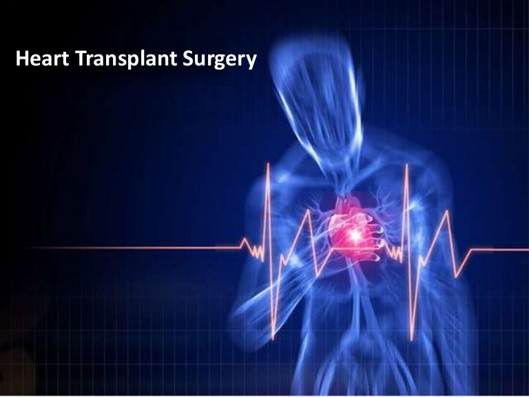 Heart transplant surgery for Cardiac ppt template