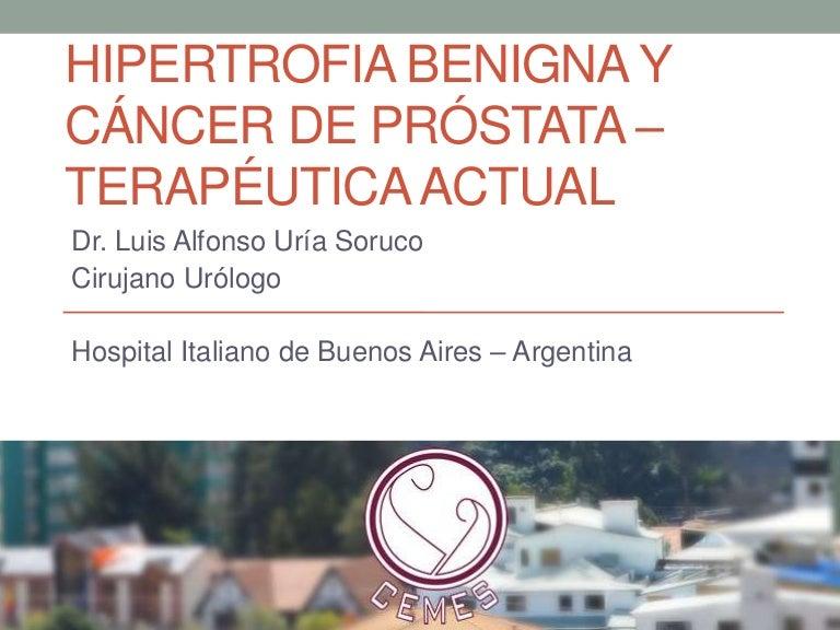 tratamiento del cáncer de próstata gleason 7 n1
