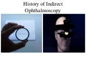 History of Indirect Ophthalmoscope