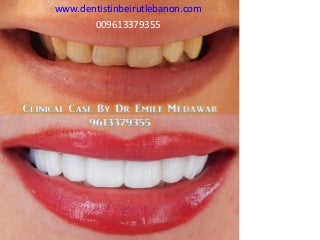 Hollywood Smile | LinkedIn