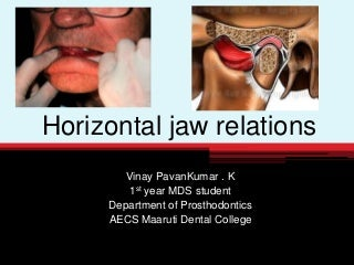 Horizontal jaw relation in complete denture