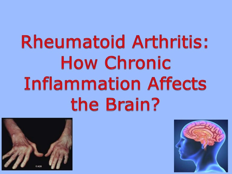 How Chronic Inflammation In Rheumatoid Arthritis Affects Brain Pre