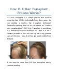 How Fue Hair Transplant Process Works?