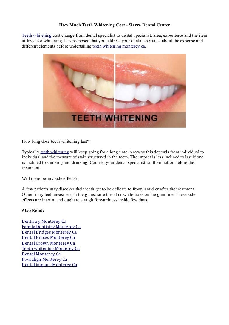 How Much Teeth Whitening Cost Sierra Dental Center