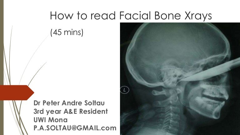 How To Read Facial Bone X Rays By Peter Andre Soltau Jan2015