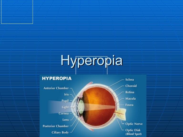 látási rendellenesség hova menjen, ha gyanús fertőzésre gyanakszik