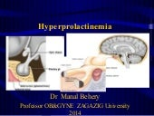 Hyperprolactinema for undergraduate  updated