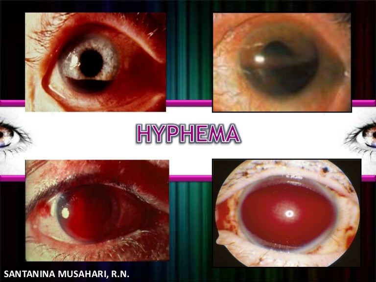 Image result for traumatic hyphema