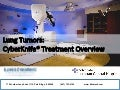 Lung Tumors: Illinois CyberKnife Treatment Overview