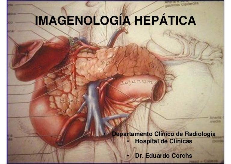 Imagen Hepática