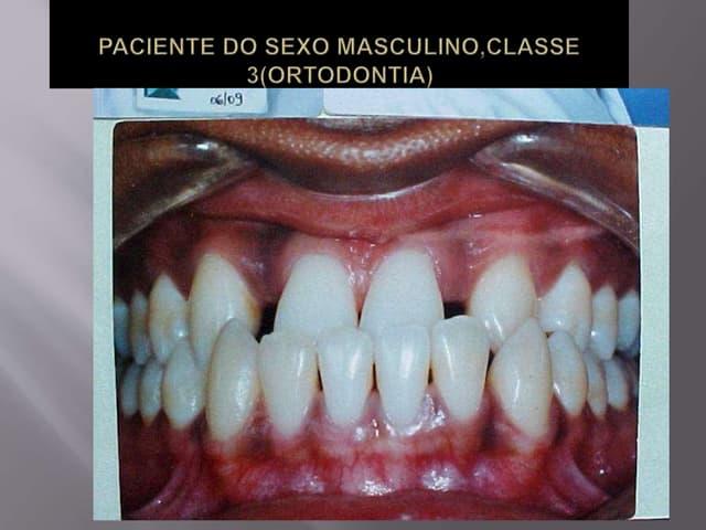 Implantes em conjunto com a ortodontia