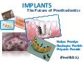 Implants the future of prosthodontics