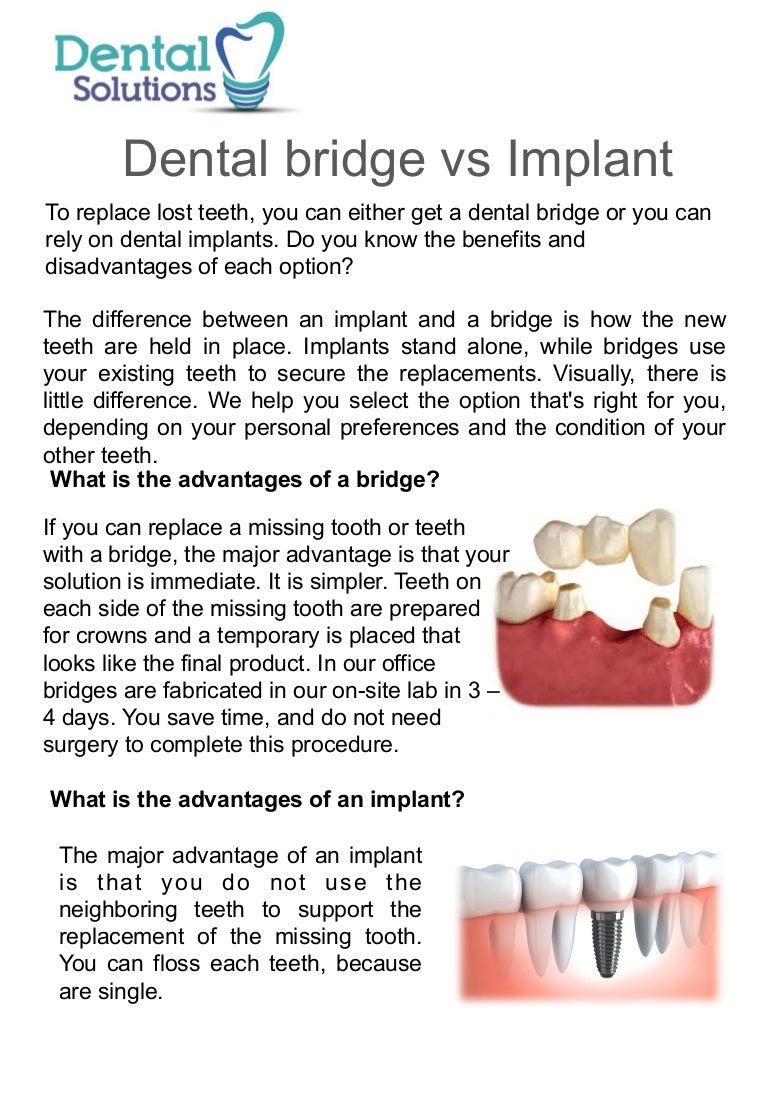 Implant vs bridge