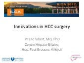 Innovations in liver surgery for Hepatocellular Carcinoma