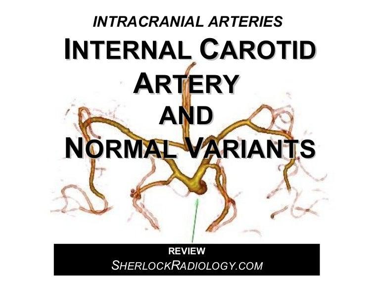 Internal Carotid Artery and Normal Variants