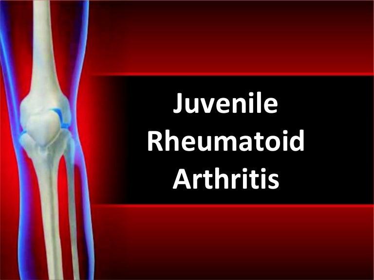 Rheumatoid arthritis ppt by ann.