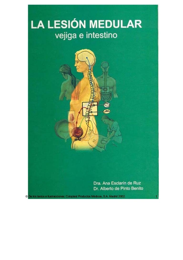 disfunción eréctil incompleta lesión de la médula espinal