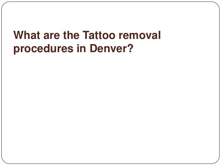 Laser tattoo removal denver