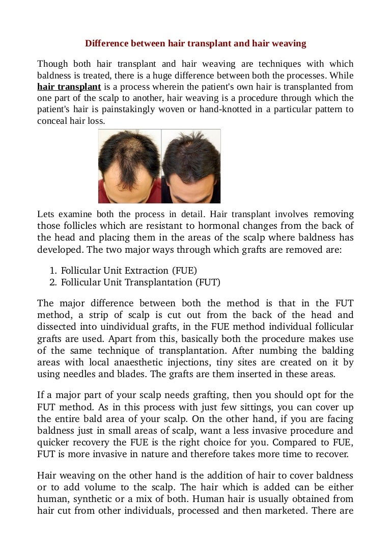 Difference Between Hair Transplant And Hair Weaving