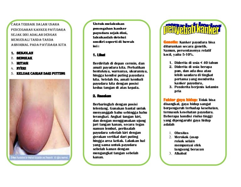 Leaflet Ca Payudara22