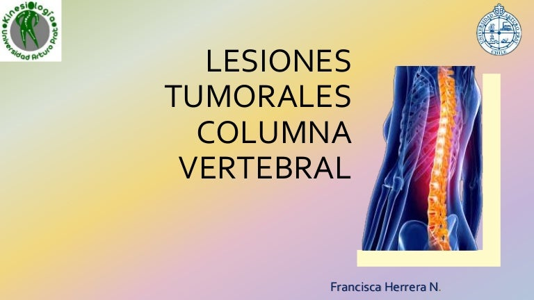 metástasis óseas por localización de vértebras de cáncer de próstata
