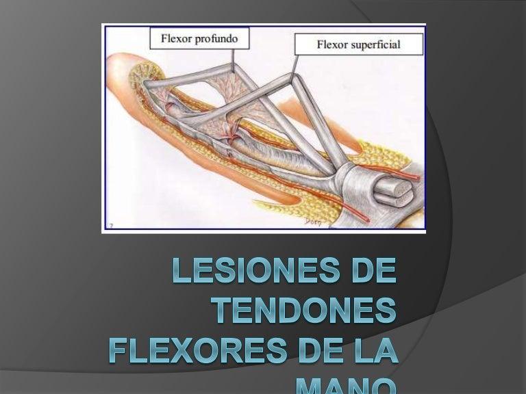 Lesiones de tendones flexores