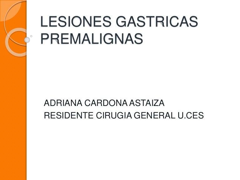 tratamiento para la gastritis cronica con metaplasia intestinal completa