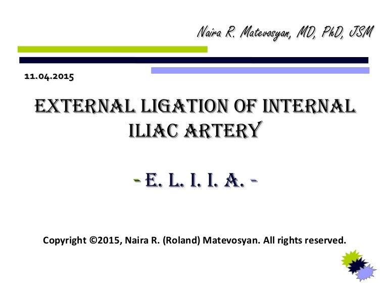 External Ligation Of Internal Iliac Artery Eliia By Naira R